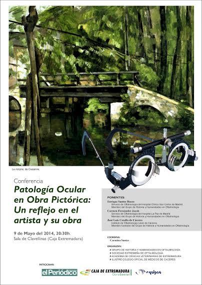 Enrique Santos Bueso dará una conferencia sobre Patología Ocular  en Cáceres